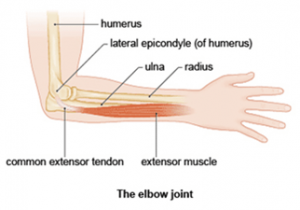 elbow tendonitis